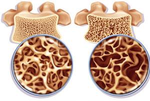 остеопороз - результат недостатка кальция