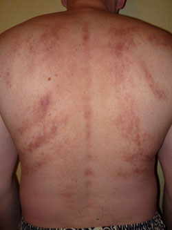 возможный вред массажа