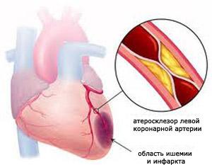 холестерин приводит к инфарктам, но он отсутствует в растительных продуктах