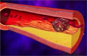 увеличивая свертываемость крови чернослив способен усилить тромбообразование